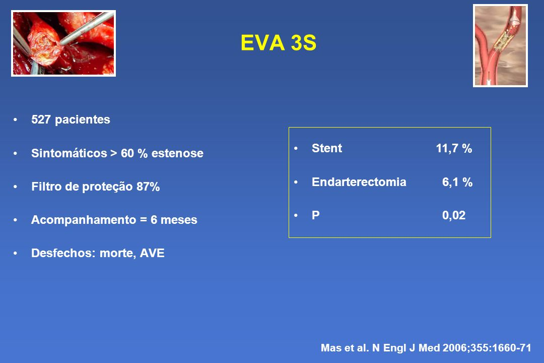 EVA 3S 527 pacientes Sintomáticos > 60 % estenose Stent 11,7 %