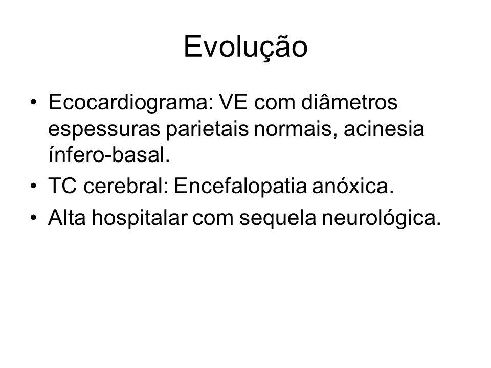 Evolução Ecocardiograma: VE com diâmetros espessuras parietais normais, acinesia ínfero-basal. TC cerebral: Encefalopatia anóxica.