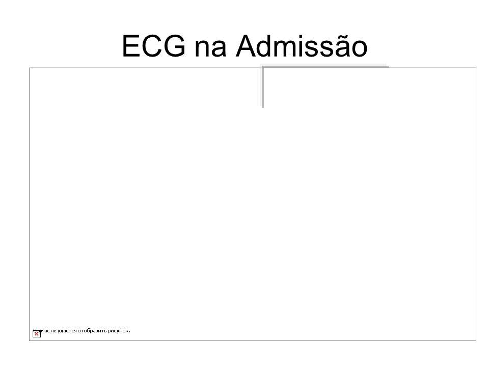 ECG na Admissão ECG - elevação de ST na parede inferior; infra de ST septal, anterior, lateral