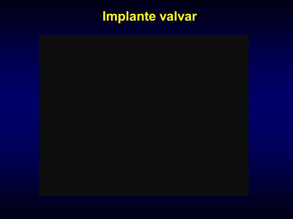 Implante valvar