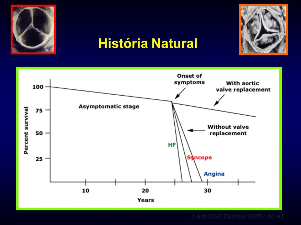 História Natural J Am Coll Cardiol 2006; 48:e1