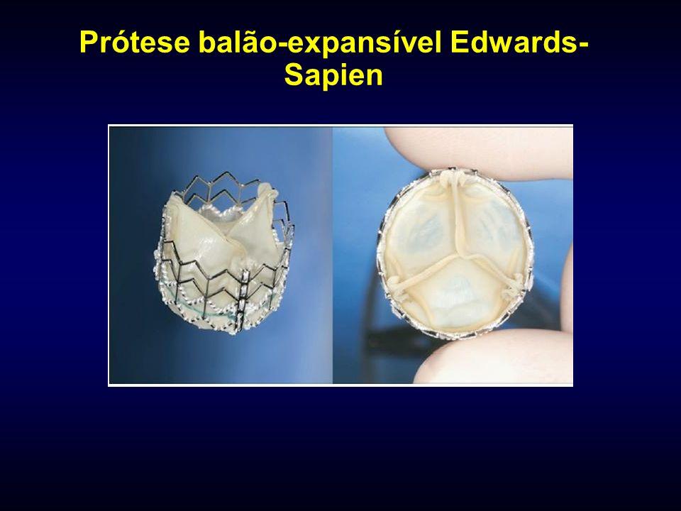 Prótese balão-expansível Edwards-Sapien