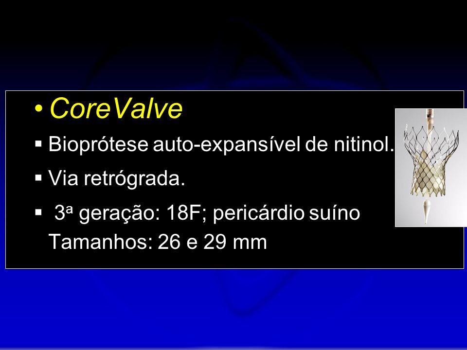 CoreValve Bioprótese auto-expansível de nitinol. Via retrógrada.