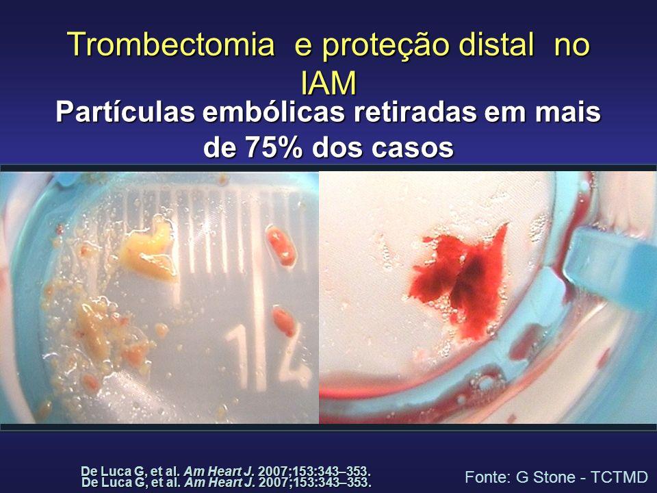 Trombectomia e proteção distal no IAM