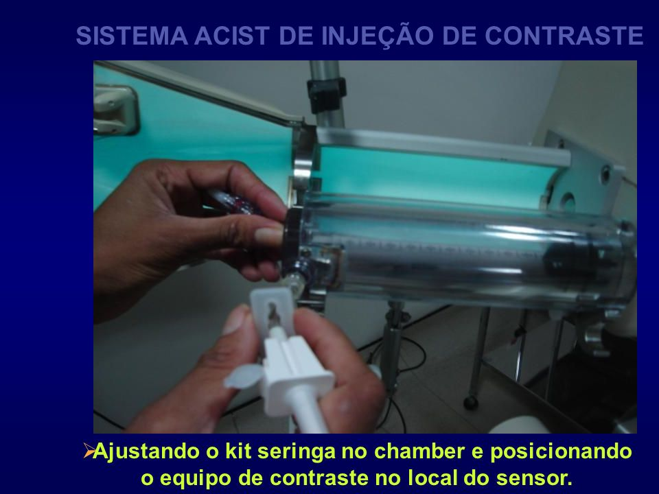 SISTEMA ACIST DE INJEÇÃO DE CONTRASTE