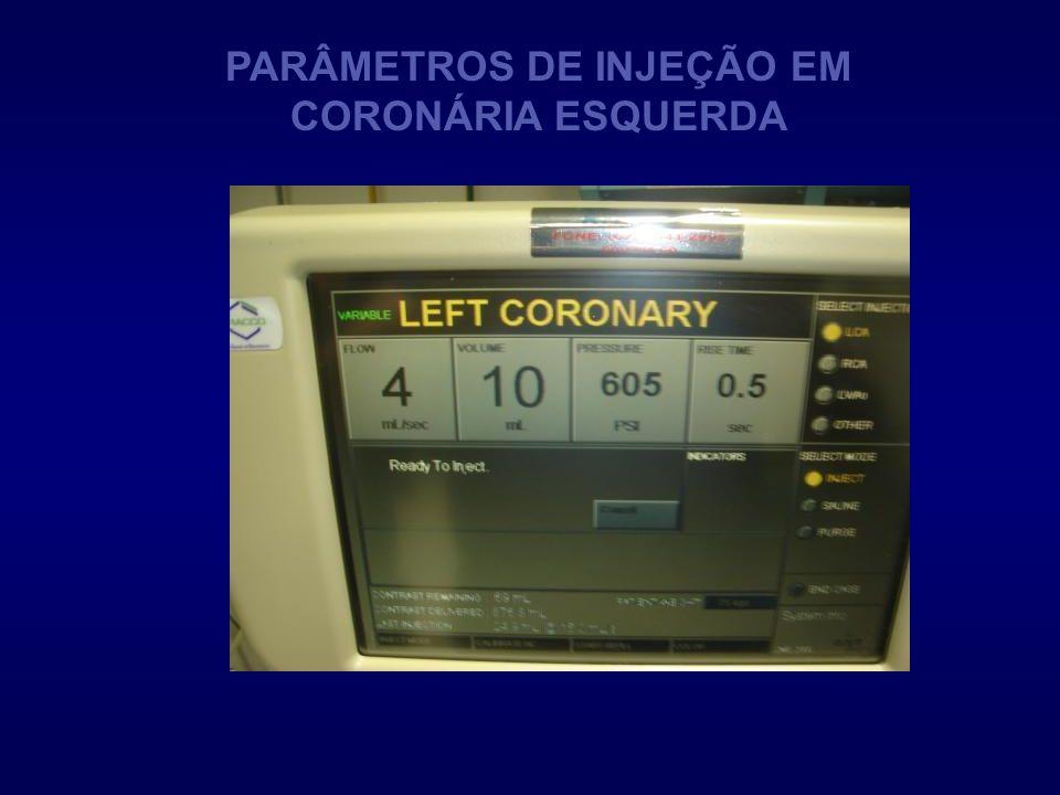 PARÂMETROS DE INJEÇÃO EM CORONÁRIA ESQUERDA