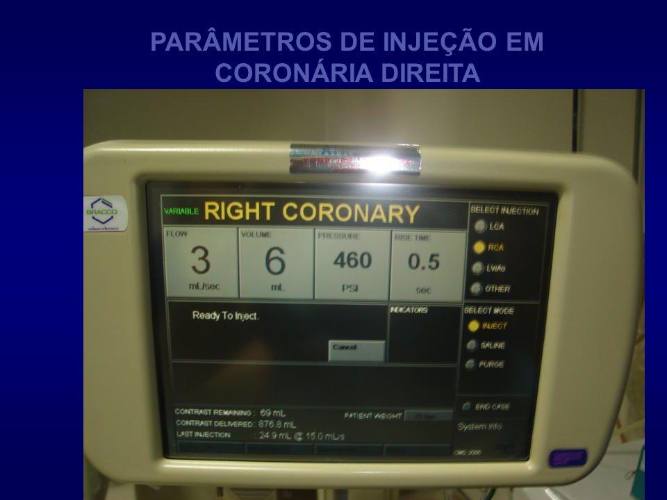 PARÂMETROS DE INJEÇÃO EM CORONÁRIA DIREITA
