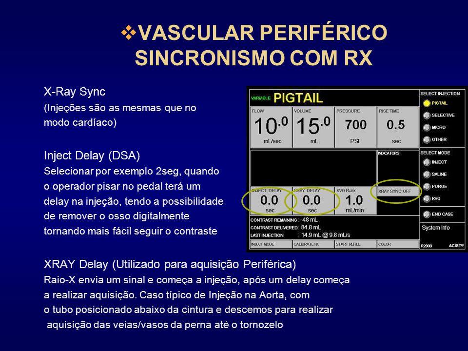 VASCULAR PERIFÉRICO SINCRONISMO COM RX