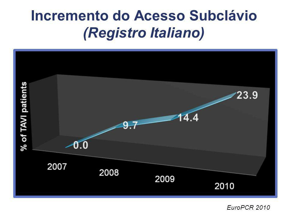 Incremento do Acesso Subclávio (Registro Italiano)