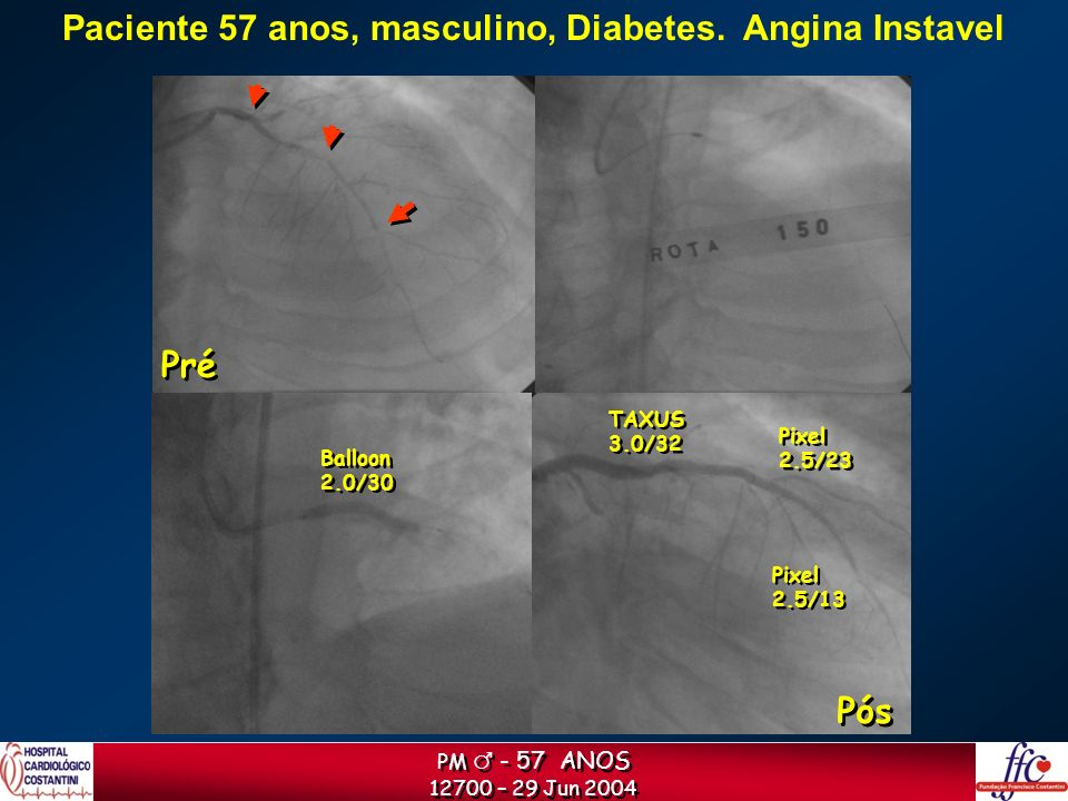 Paciente 57 anos, masculino, Diabetes. Angina Instavel