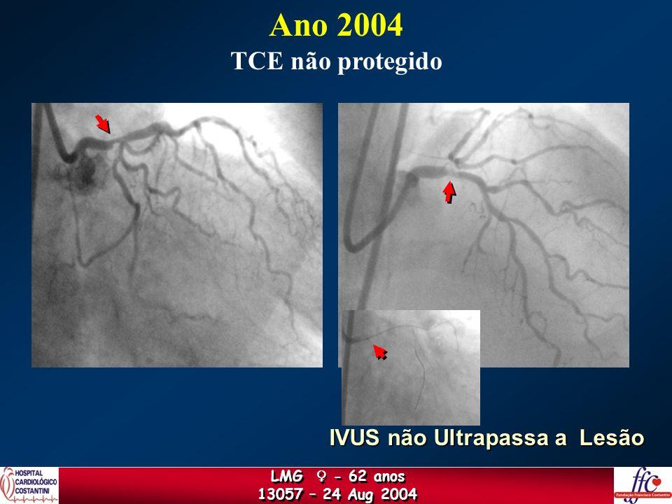 Ano 2004 TCE não protegido IVUS não Ultrapassa a Lesão LMG ♀ - 62 anos