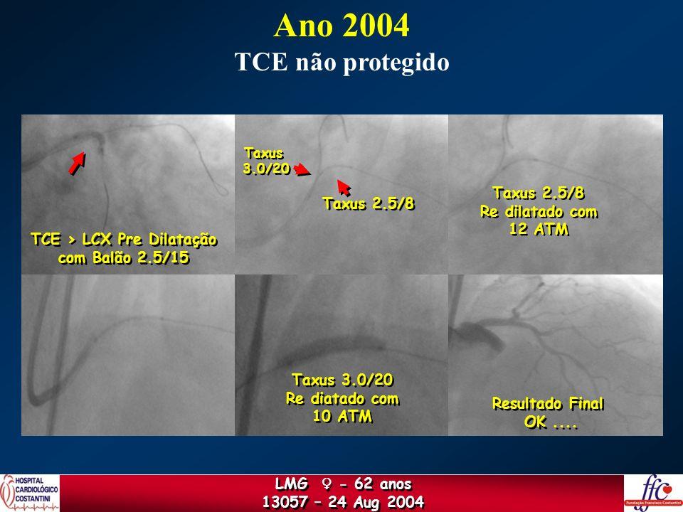 TCE > LCX Pre Dilatação