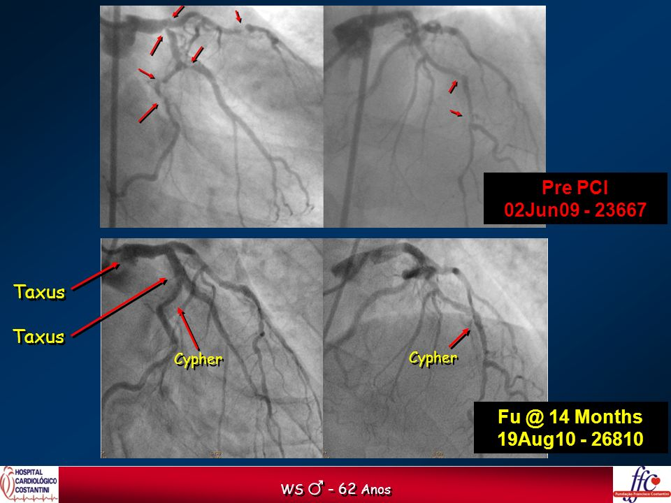 Pre PCI 02Jun09 - 23667 Fu @ 14 Months 19Aug10 - 26810