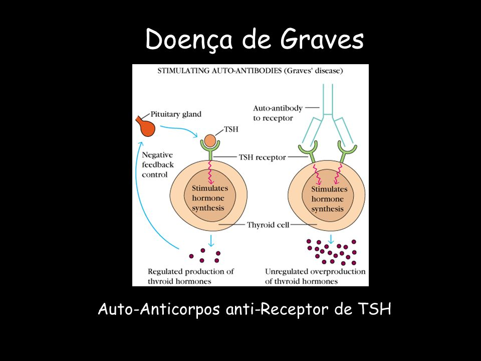 Doença de Graves Auto-Anticorpos anti-Receptor de TSH