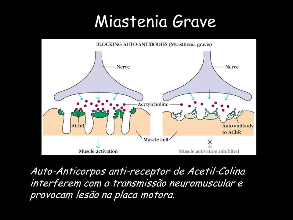 Miastenia GraveAuto-Anticorpos anti-receptor de Acetil-Colina interferem com a transmissão neuromuscular e provocam lesão na placa motora.