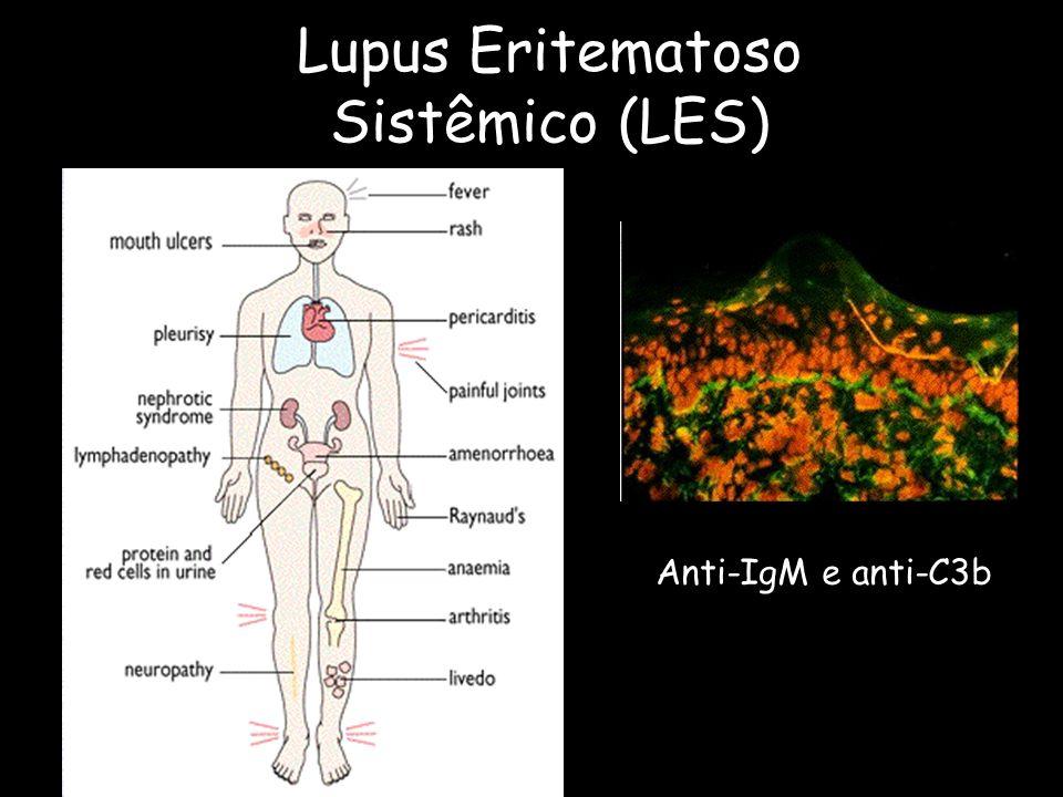 Lupus Eritematoso Sistêmico (LES)