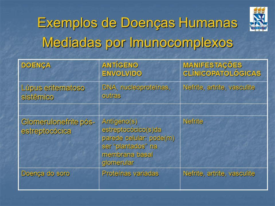 Exemplos de Doenças Humanas Mediadas por Imunocomplexos