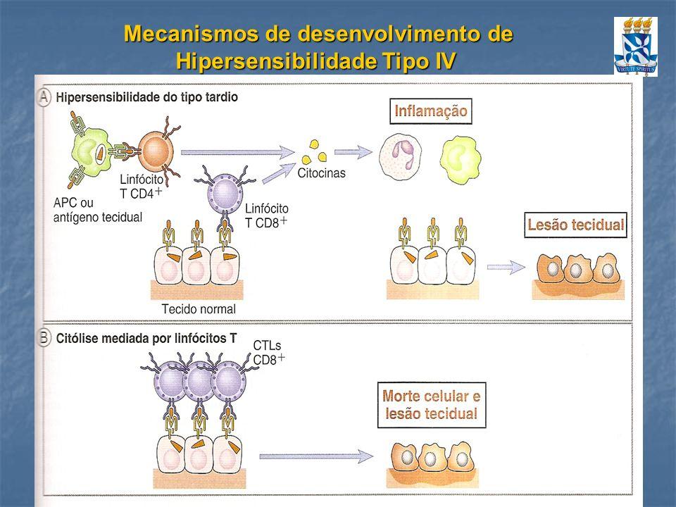 Mecanismos de desenvolvimento de Hipersensibilidade Tipo IV