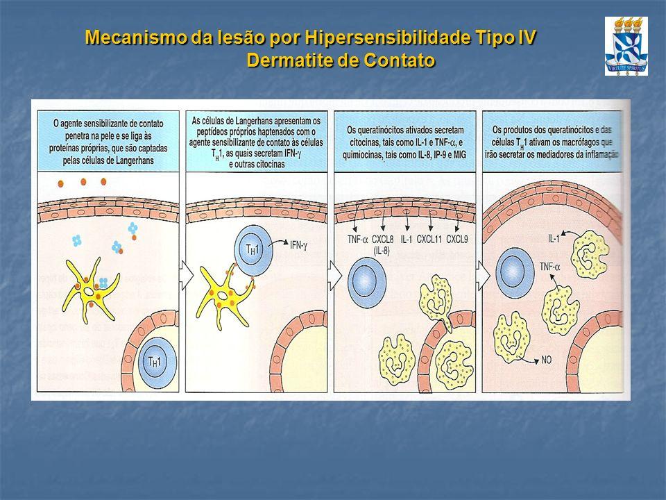 Mecanismo da lesão por Hipersensibilidade Tipo IV