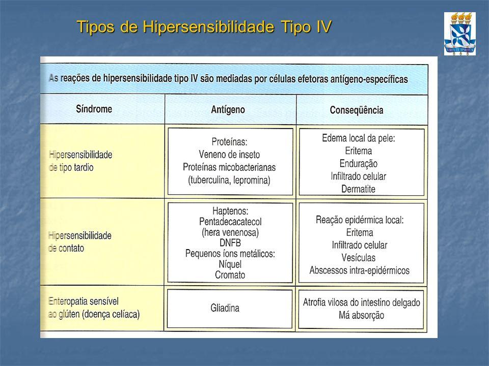Tipos de Hipersensibilidade Tipo IV