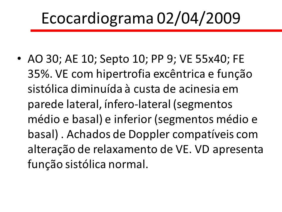 Ecocardiograma 02/04/2009
