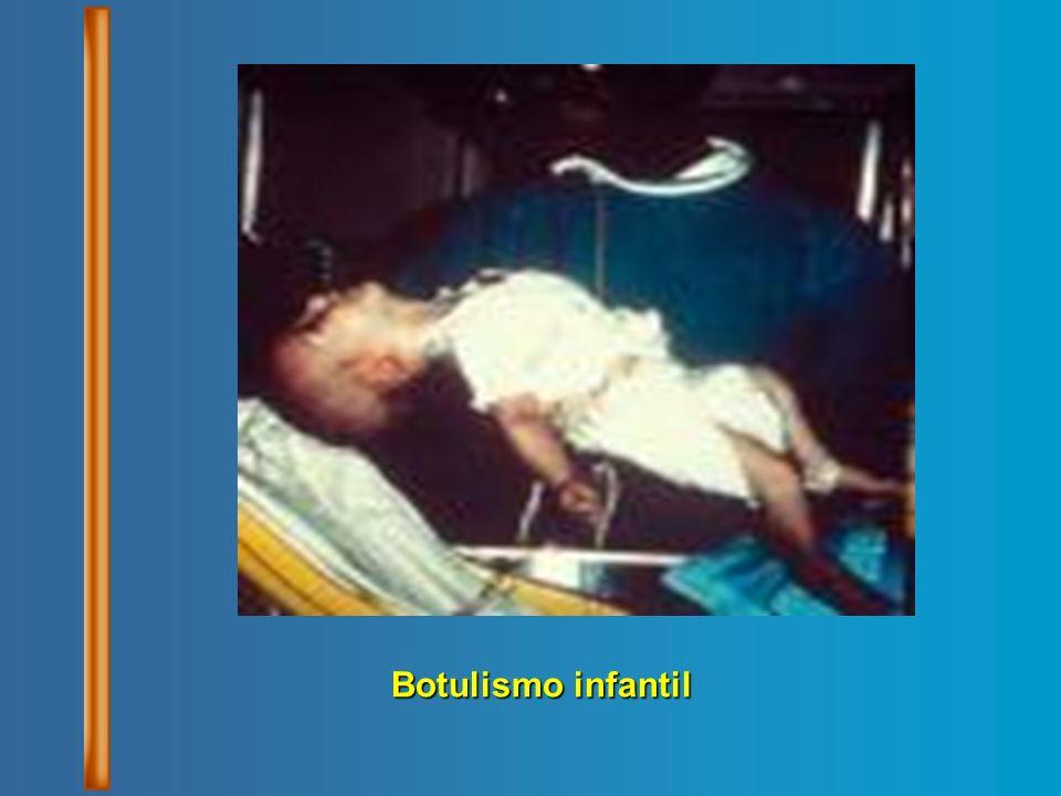 Botulismo infantil
