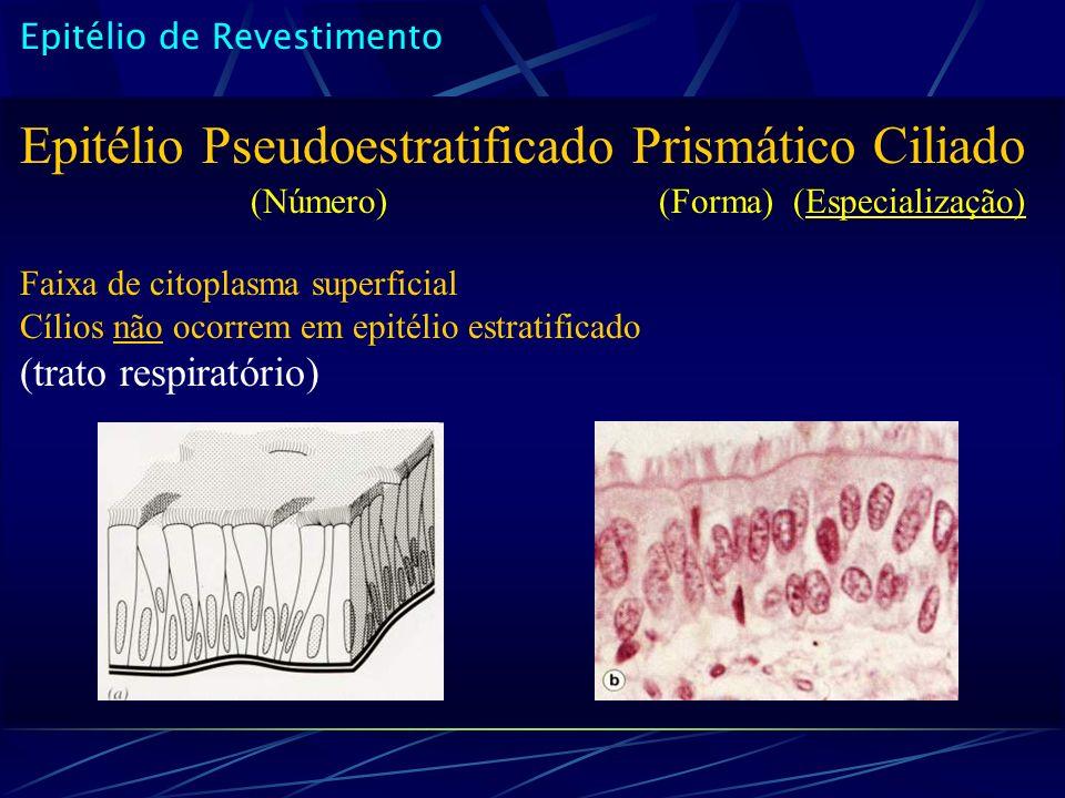 Epitélio Pseudoestratificado Prismático Ciliado