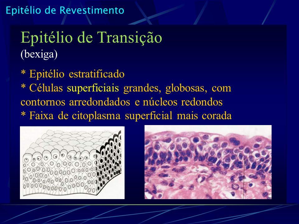 Epitélio de Transição (bexiga)