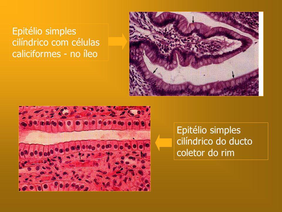 Epitélio simples cilíndrico com células caliciformes - no íleo