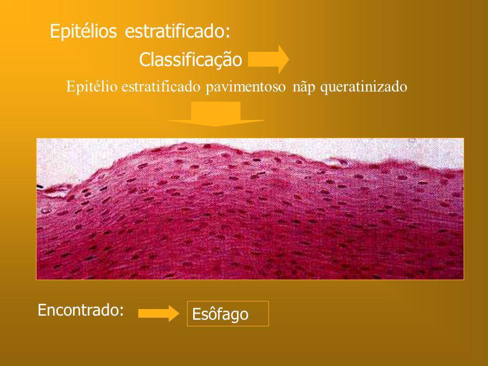 Epitélios estratificado: