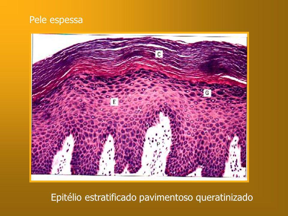 Pele espessa Epitélio estratificado pavimentoso queratinizado