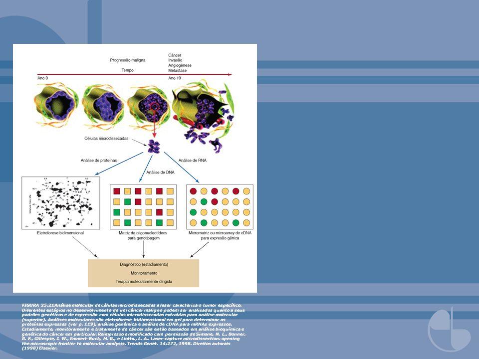 FIGURA 25.21Análise molecular de células microdissecadas a laser caracteriza o tumor específico.