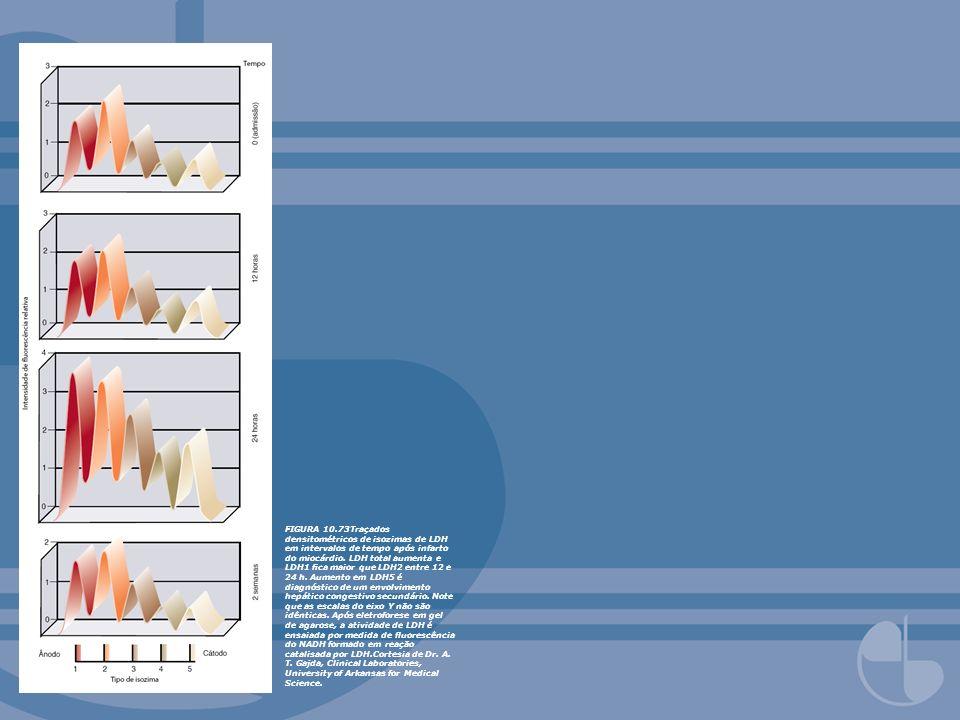 FIGURA 10.73Traçados densitométricos de isozimas de LDH em intervalos de tempo após infarto do miocárdio.