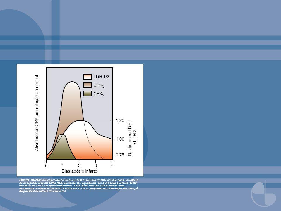FIGURA 10.74Mudanças características em CPK e isozimas de LDH no soro após um infarto do miocárdio.