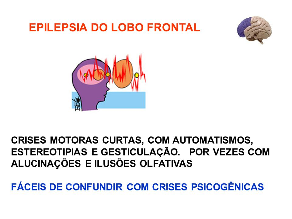 EPILEPSIA DO LOBO FRONTAL