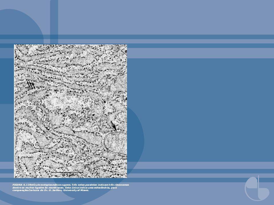 FIGURA 6. 12Retículo endoplasmático rugoso