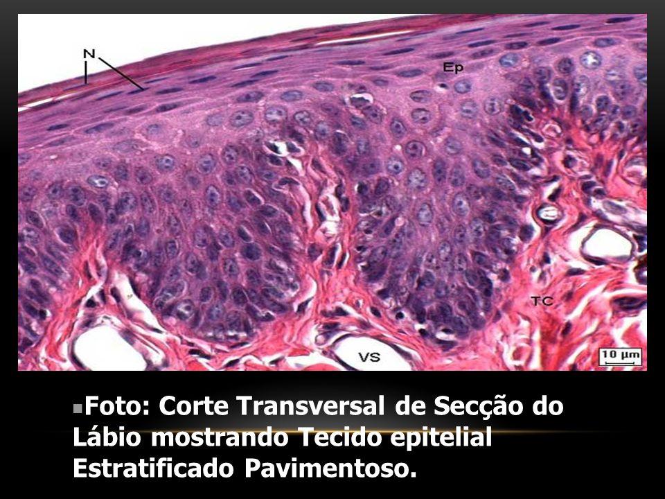 Foto: Corte Transversal de Secção do Lábio mostrando Tecido epitelial Estratificado Pavimentoso.