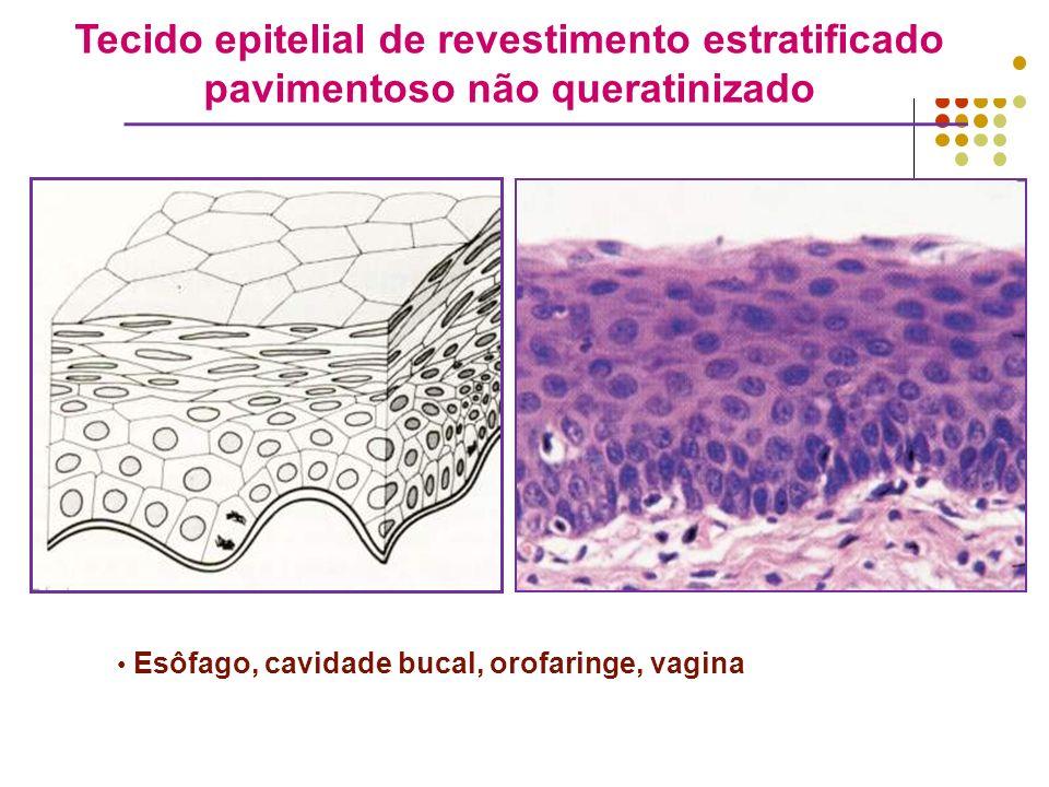 Tecido epitelial de revestimento estratificado pavimentoso não queratinizado