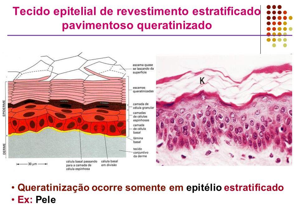 Tecido epitelial de revestimento estratificado pavimentoso queratinizado