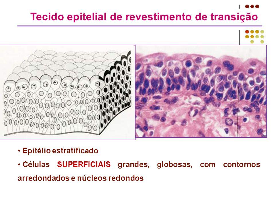 Tecido epitelial de revestimento de transição