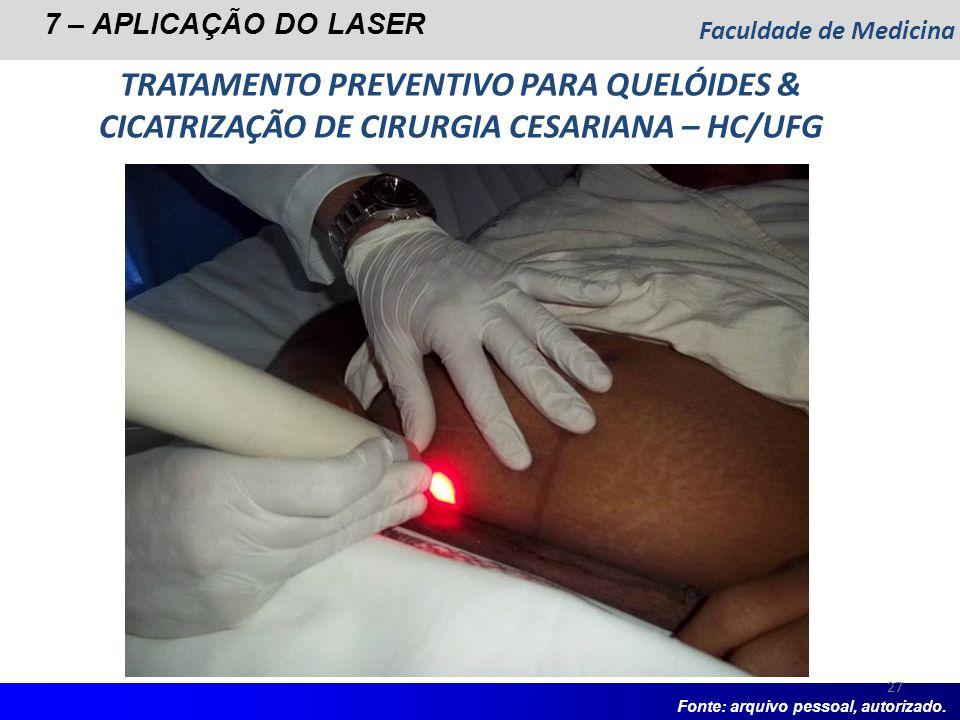 Faculdade de Medicina7 – APLICAÇÃO DO LASER. TRATAMENTO PREVENTIVO PARA QUELÓIDES & CICATRIZAÇÃO DE CIRURGIA CESARIANA – HC/UFG.
