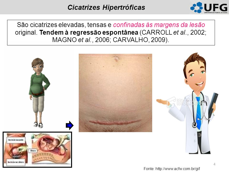 Cicatrizes Hipertróficas