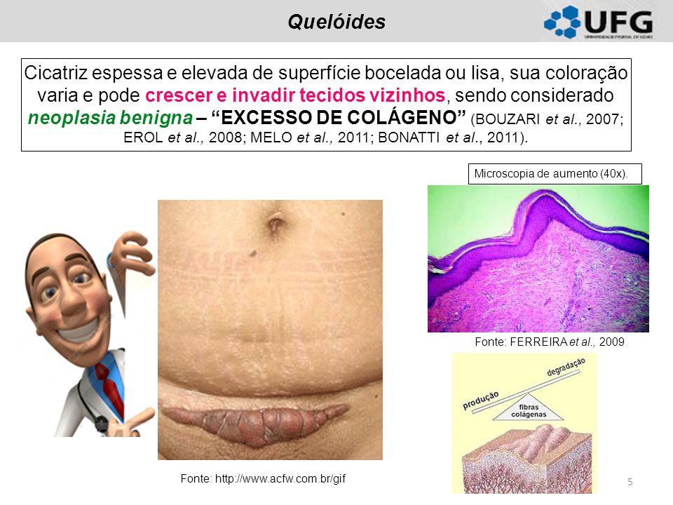 Quelóides