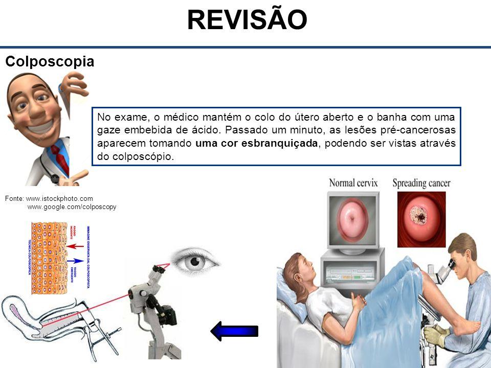 REVISÃO Colposcopia.