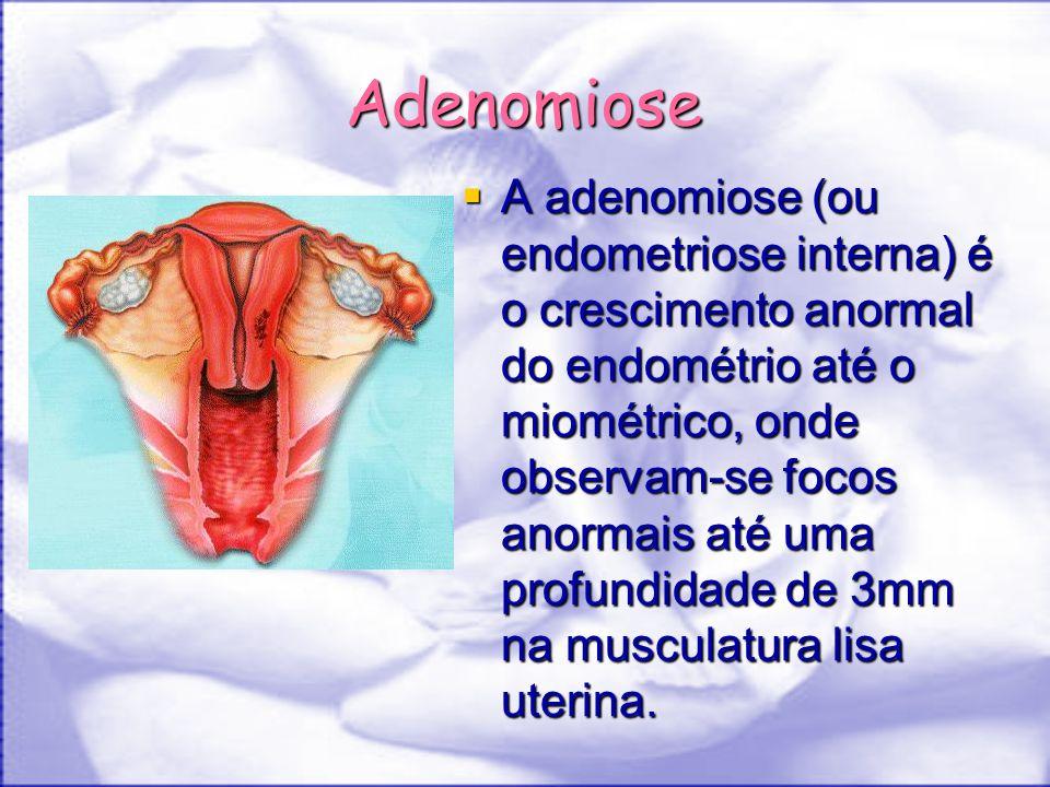 durchfall endometriose