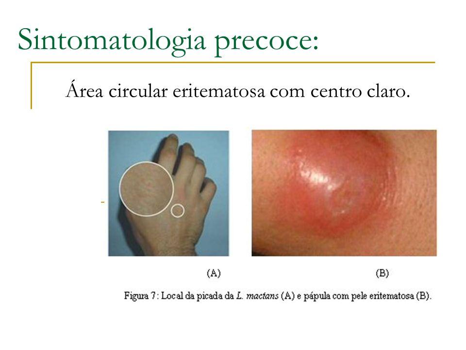Sintomatologia precoce: