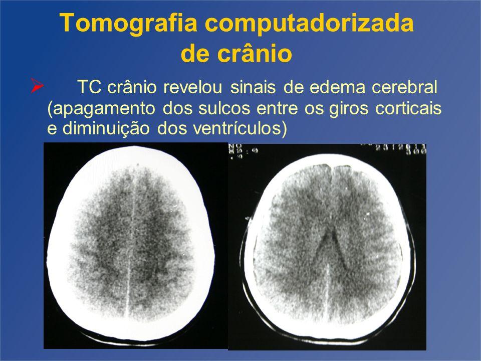 Tomografia computadorizada de crânio