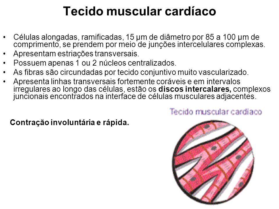 Tecido muscular cardíaco