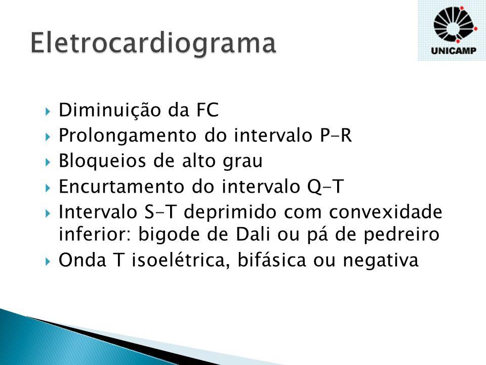 Eletrocardiograma Diminuição da FC Prolongamento do intervalo P-R