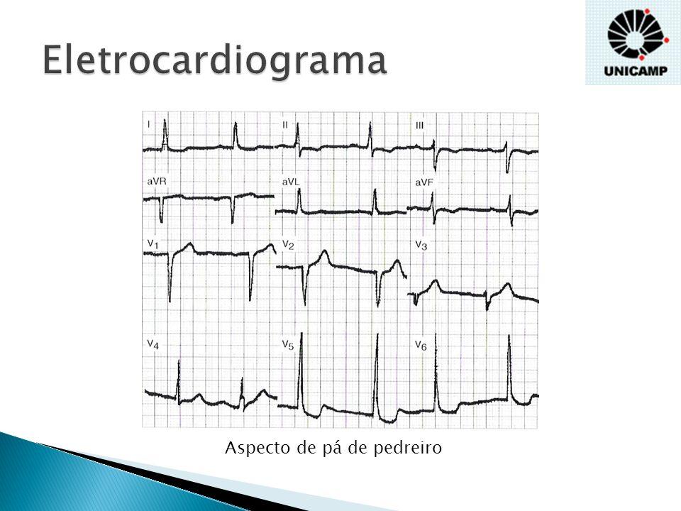 Eletrocardiograma Aspecto de pá de pedreiro